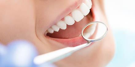 Comment être bien remboursé de vos frais dentaires ?
